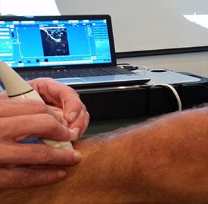 Behandeling spierknopen of triggepoints door dry needling.