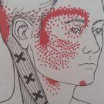 Triggerpoints geven uitstralende klachten bijvoorbeeld naar hoofd nek en lage rug.